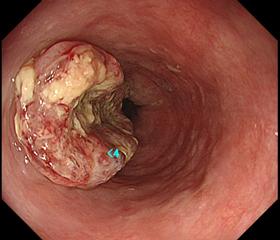 胃がんの分類と治療法 | findMed|がん治療をだれ …